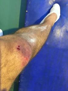 Des petites blessures que sont la toujours pour me rappeler le danger de ma job